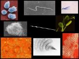 spermatozoides
